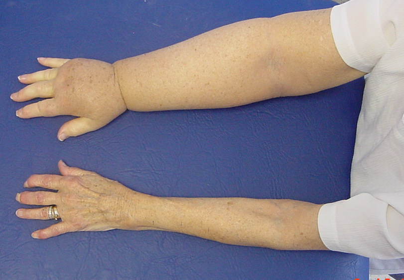Arm Swelling M Todd Lymphoedema Scotland