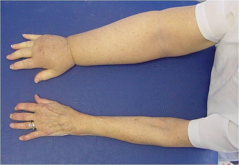 Arm lymphoedema